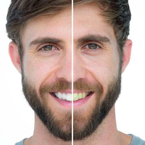 Before and after teeth whitening in Jacksonville FL