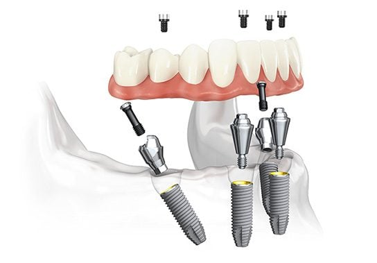 Demonstration of all on 4 dental implants Jacksonville FL