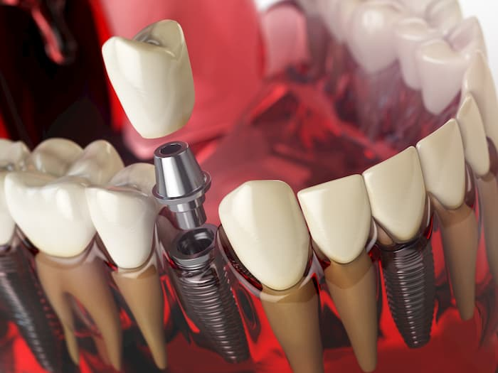 Image of what a dental implant looks like
